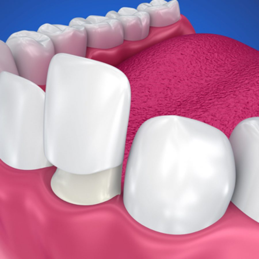 What-is-a-Dental-Crown