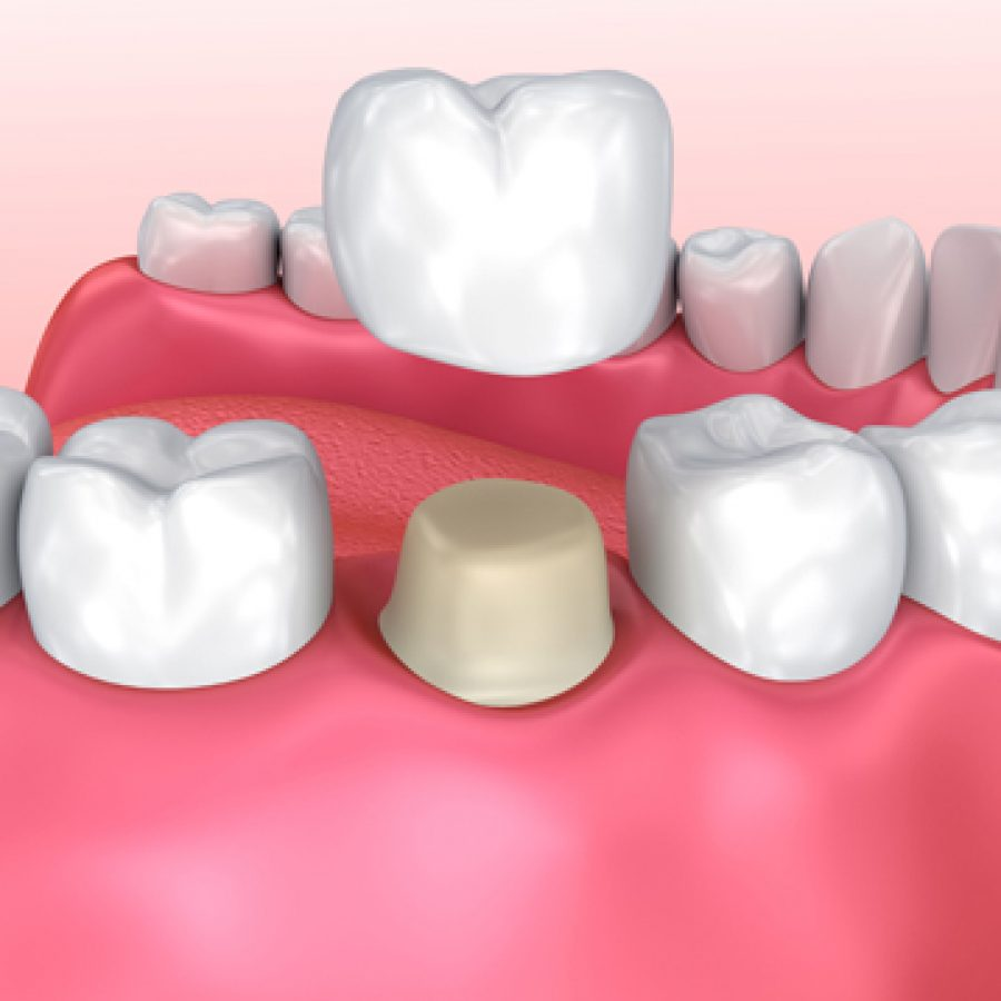 Why-might-a-Dental-Crown-be-needed