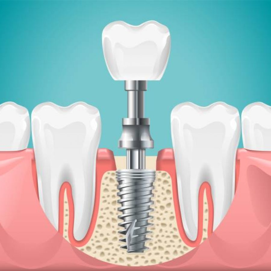Dental surgery. Tooth implant cut vector illustration. Healthy teeth and dental implant, stomatology poster. Implant dental metal screw in gum